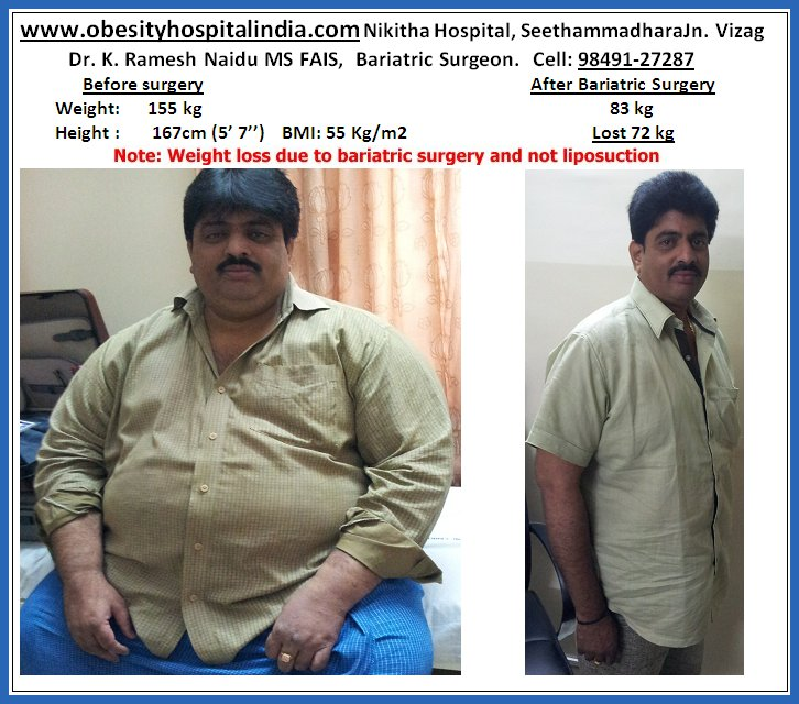 Best doctor for weight loss in lucknow